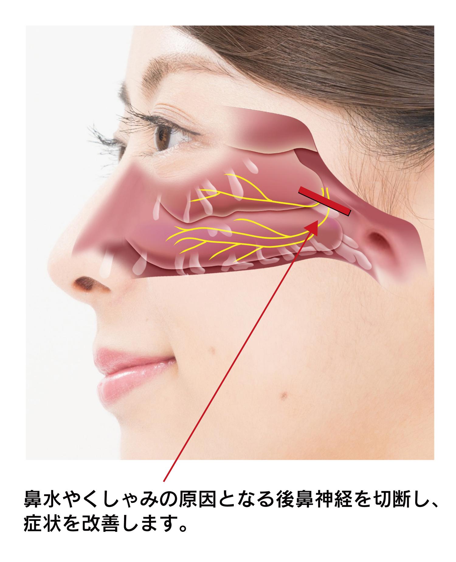 鼻 づまり 手術
